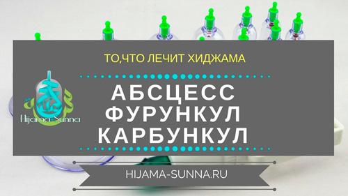 ЛЕЧЕНИЕ ХИДЖАМОЙ АБСЦЕССА ФУРУНКУЛА КАРБУНКУЛА