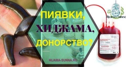 донорство пиявки или хиджама