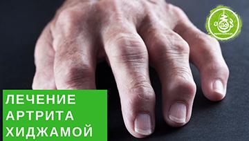 ЛЕЧЕНИЕ АРТРИТА ХИДЖАМОЙ